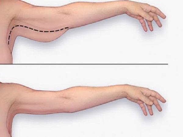 Bài tập giảm bắp tay hiệu quả tại nhà cho chị em